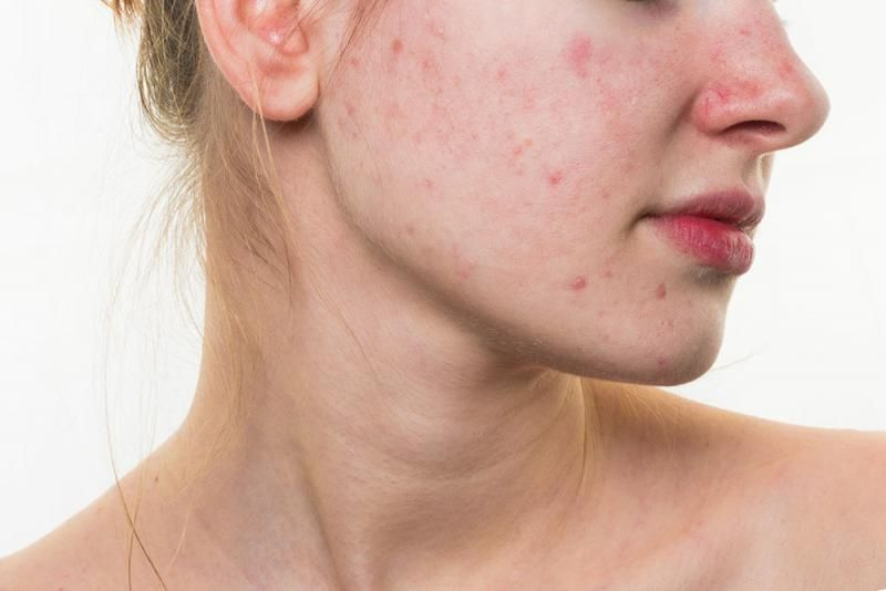 vaporub health benefits 6