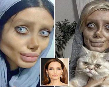 angelina jolie plastic surgery attempt