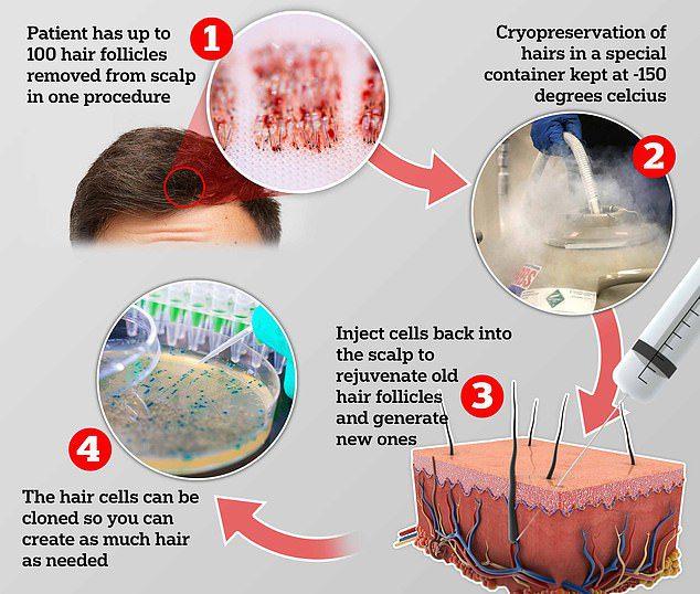 hair cloning technology